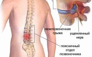 Помогает ли ударно волновая терапия при межпозвоночной грыже
