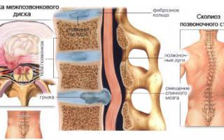 Лечение межпозвоночной грыжи грудного отдела в домашних условиях