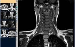 Что показывает МРТ шейного отдела позвоночника, как делают МРТ