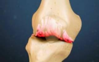 Отложение солей в коленях — симптомы и лечение