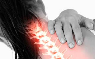 Синдром позвоночной артерии при шейном остеохондрозе: симптомы, лечение и упражнения