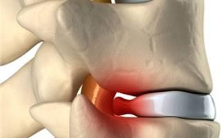 Как лечить грыжу диска позвоночника без операции