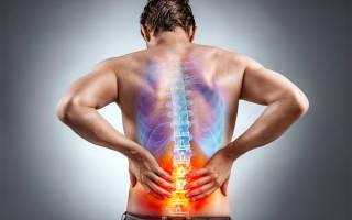 Эффективные упражнения для снятия боли в пояснице