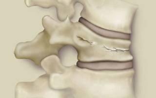 Почему болит спина после компрессионного перелома позвоночника