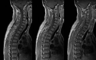 Можно ли делать рентген сразу всего позвоночника