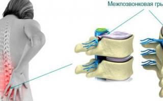 Скачки давления при грыже шейного отдела позвоночника: анализы, витамины, диагноз, что это такое
